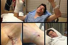 MotoGP - Kleiner Eingriff an rechter Hand: Hayden im Krankenhaus