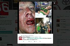 NASCAR - NASCAR-Veteran ins Krankenhaus geprügelt