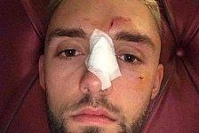 Jonas Folger: Kollision mit Vogel bei Moto2-Test, Nasenbruch!
