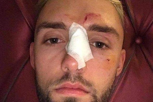 Für Jonas Folger endete der Moto2-Test im Krankenhaus - Foto: Instagram/Jonas Folger